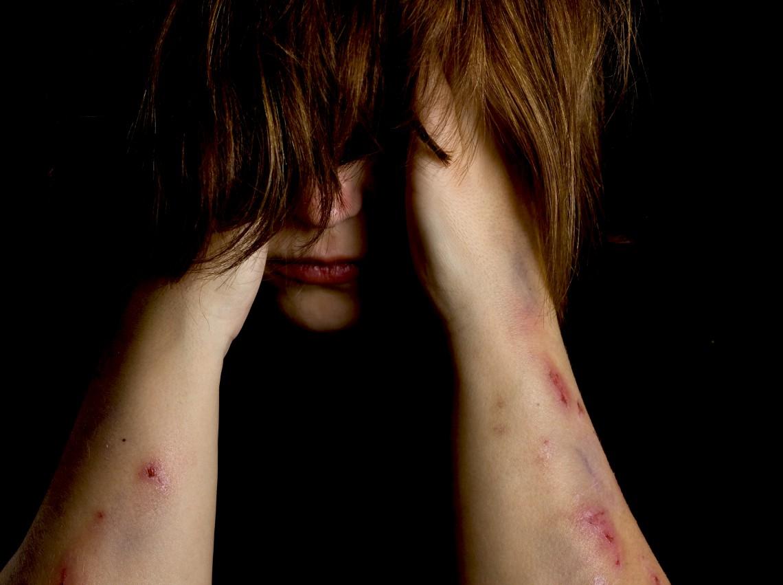 Selvskading - Illustrasjonsfoto: Shutterstock